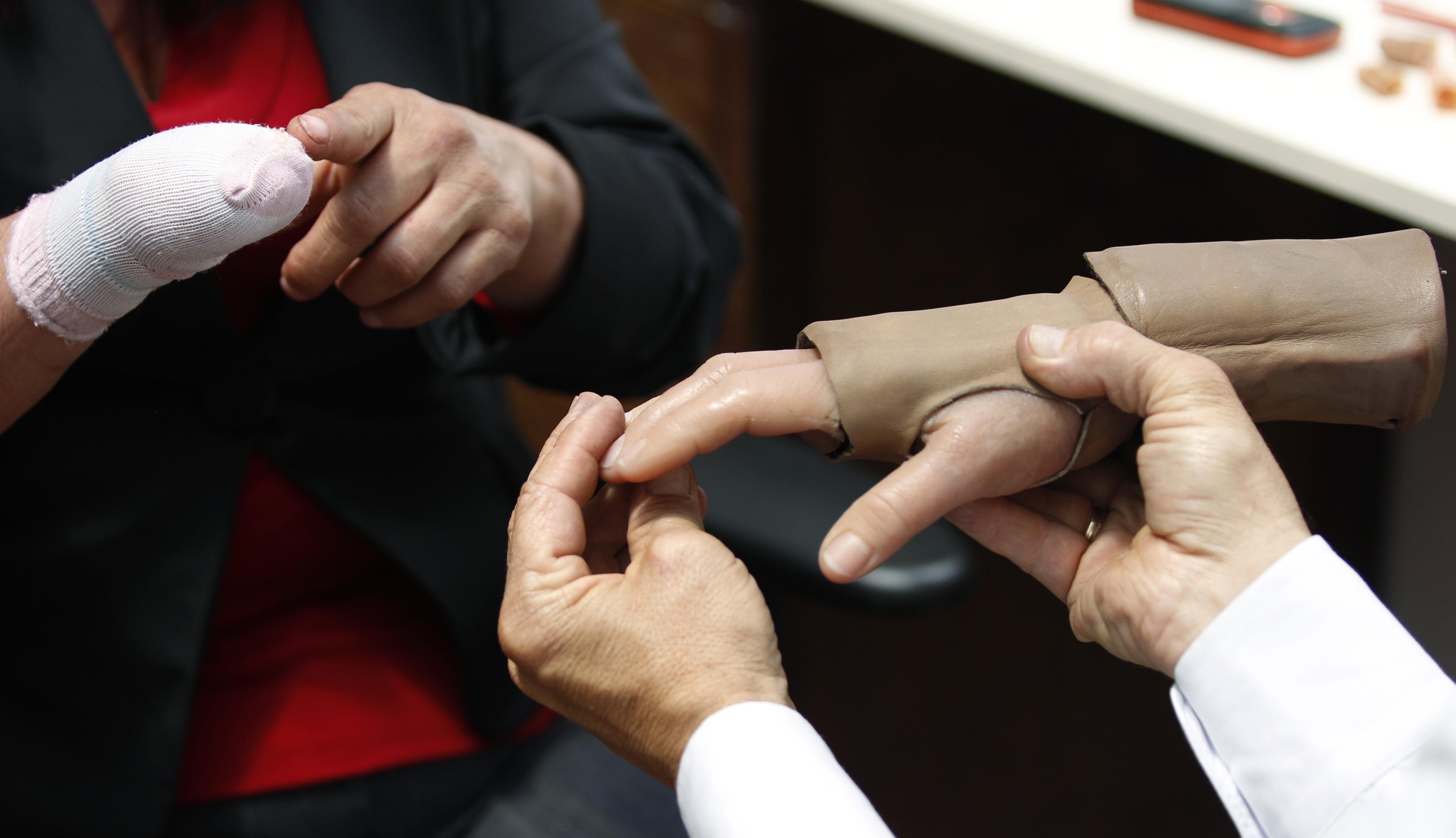 Deux mains qui tiennent une prothèse de main pour la placer sur un moignon (© AP Images)