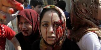Une femme dans la foule, le visage ensanglanté, et une autre femme qui a du sang sur le menton (© AP Images)