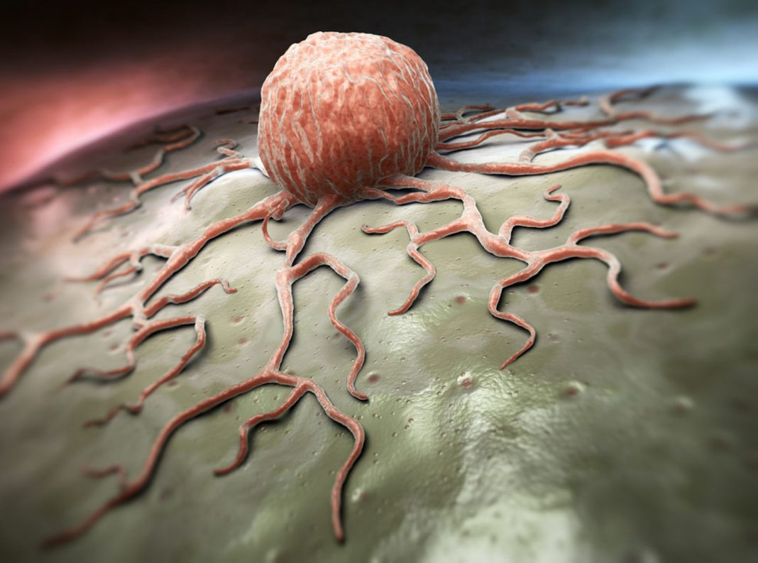 Close-up view of cancer cell (Shutterstock)