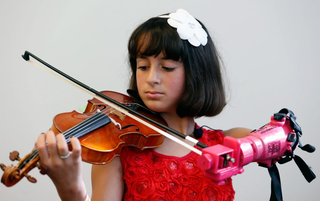 Girl playing violin with prosthetic arm (© AP Images)