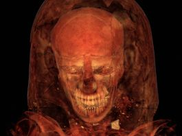 CT scanning of mummy (© The Field Museum)