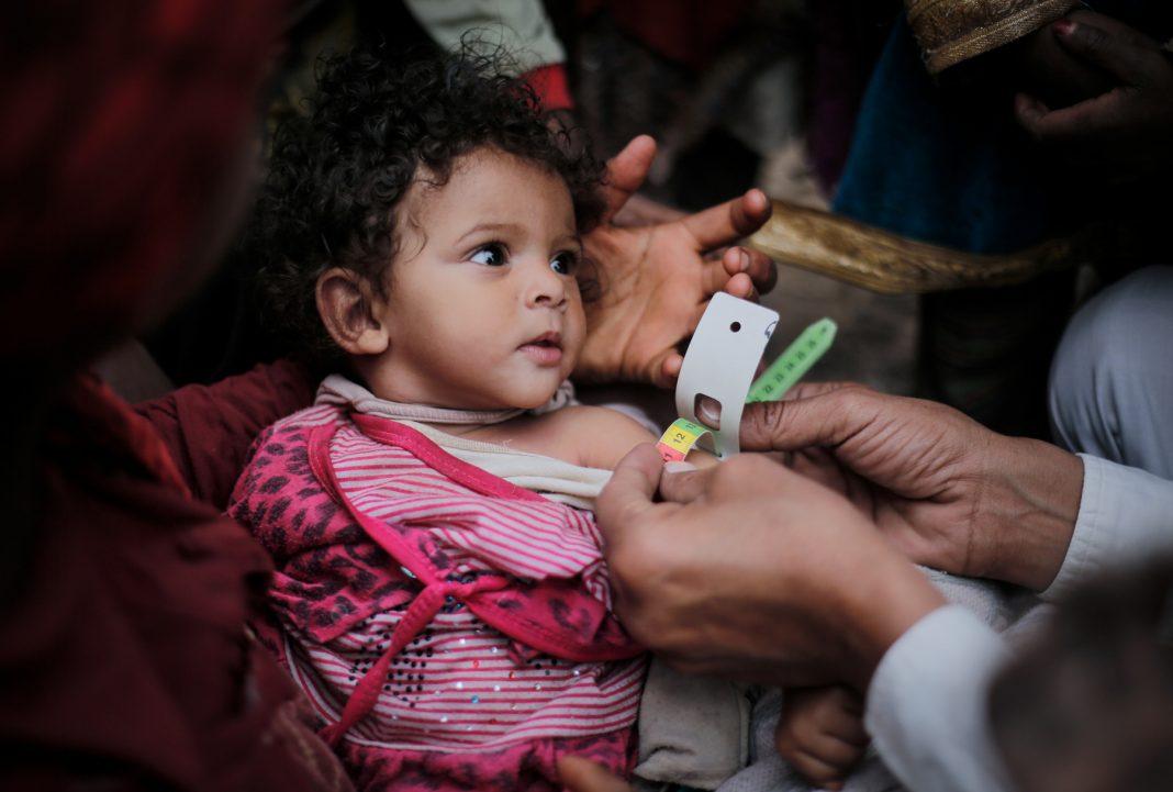 Criança sendo examinada para determinar seu nível de desnutrição com o uso de fita em torno do braço (© Unicef/Almang)
