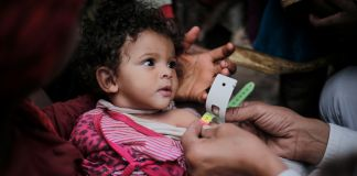 Child being measured for malnutrition using tape around arm (© UNICEF/Almang)