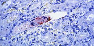 Close-up of virus (© BSIP SA/Alamy)