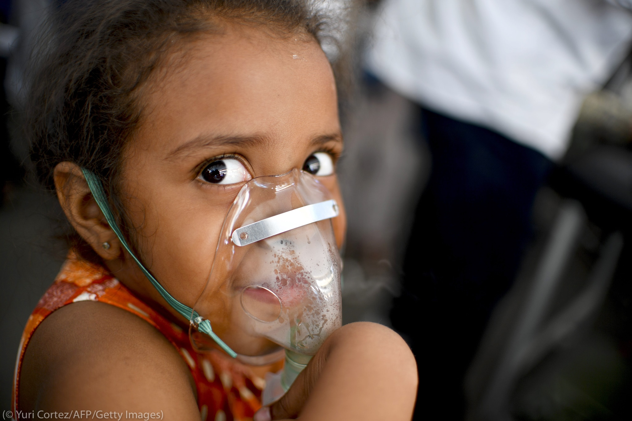 Girl wearing oxygen mask (© Yuri Cortez/AFP/Getty Images)