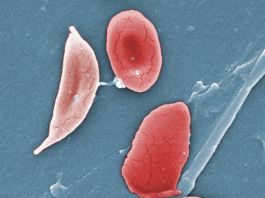 Colorized microscope image showing a sickle cell, left, and normal red blood cells (© Janice Haney Carr/CDC/Sickle Cell Foundation of Georgia)