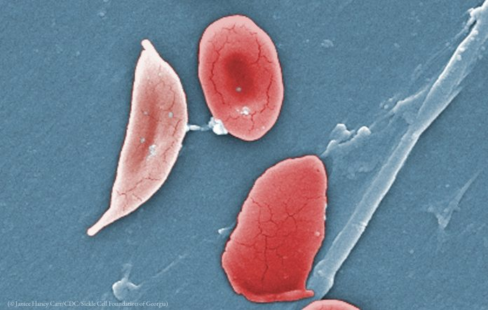 Image microscopique colorisée montrant des cellules (© Janice Haney Carr/CDC/Sickle Cell Foundation of Georgia)ickle cell, left, and normal red blood cells (© Janice Haney Carr/CDC/Sickle Cell Foundation of Georgia)