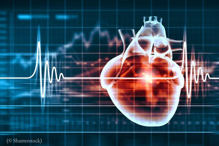 Illustration showing EKG and heart (© Shutterstock)