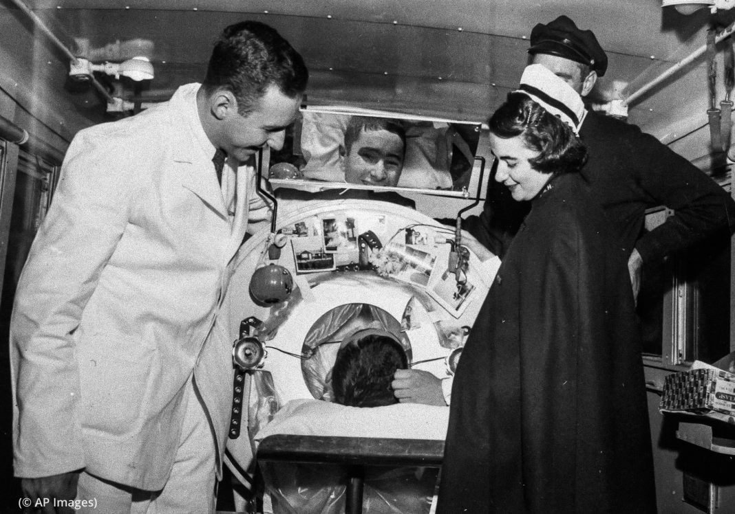 Paciente com poliomielite no pulmão de ferro, ladeado por profissionais médicos (© AP Images)