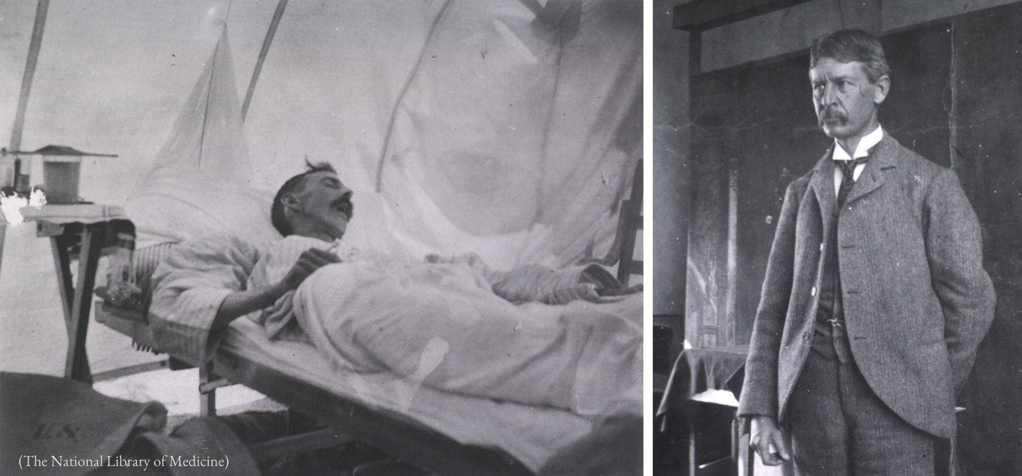 Left photo: Patient lying on low bed next to cloth wall. Right photo: Man with mustache in three-piece suit (The National Library of Medicine)