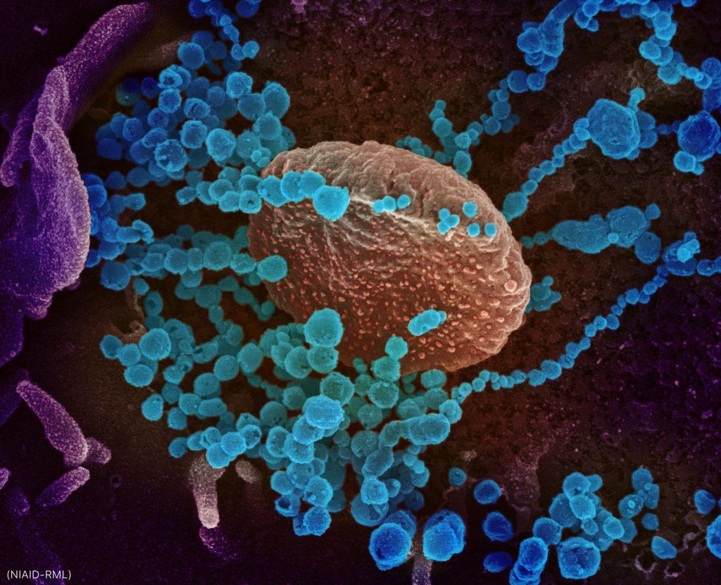 Organismos pequenos e coloridos, e filamentos de organismos em torno de bolha marrom (Niaid-RML)